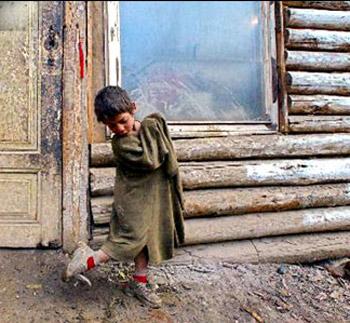 Fakirliğin diğer hali ile karşılaştınız mı ?