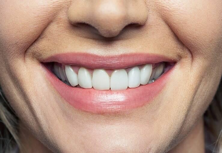 izmir-implant-cadde-dental