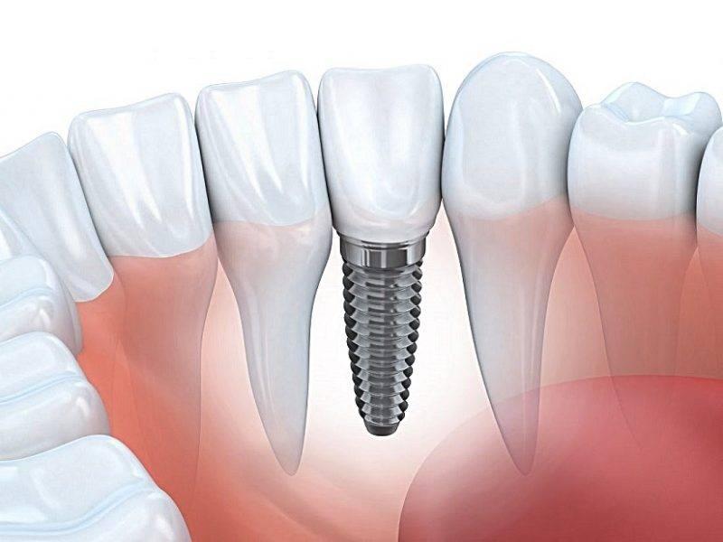 izmir-implant