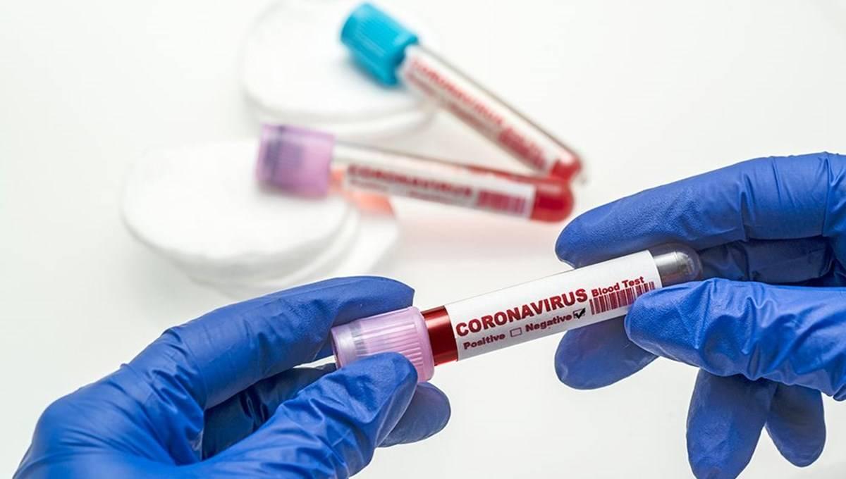 14 Ekim 2021 corona virüs tablosu